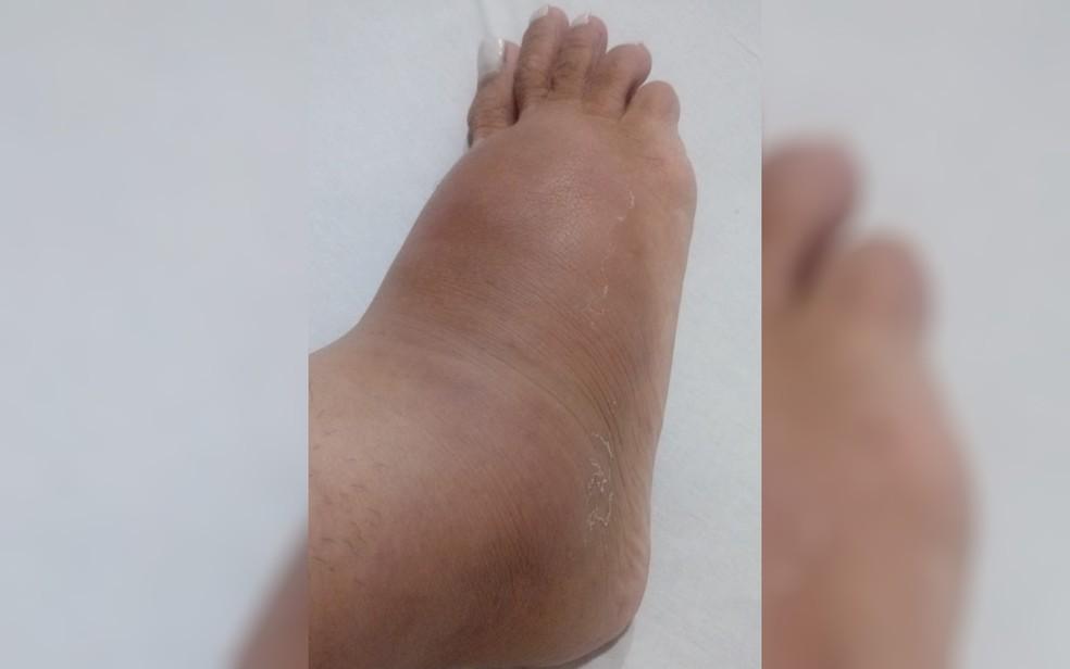 Luara Butielles está com pé inchado após silicone se deslocar, em Goiás — Foto: Luara Butielles Nunes/Arquivo pessoal