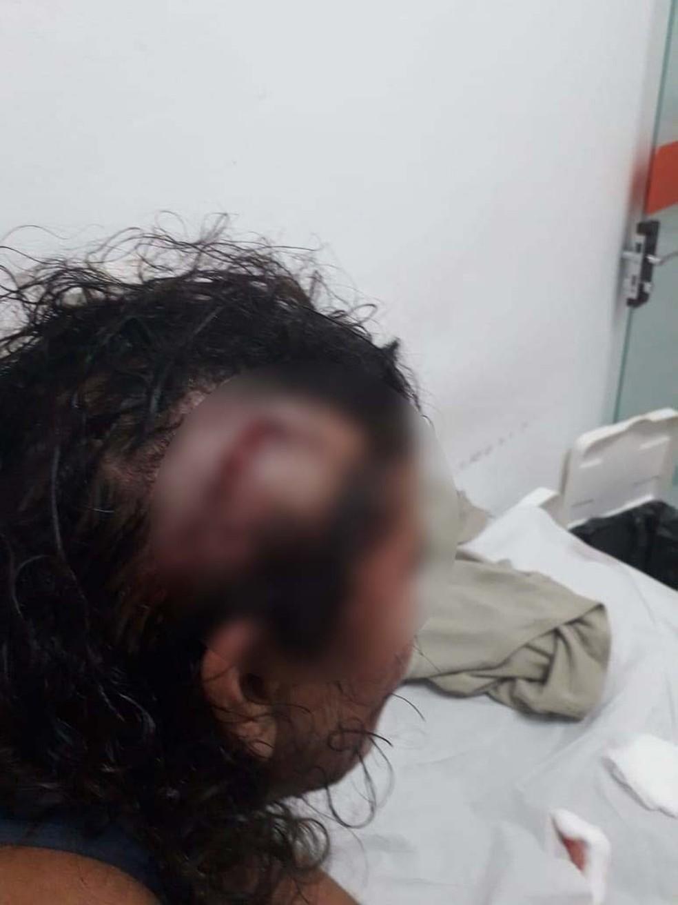 Vizinha teve corte profundo em cabeço após tentar salvar mulher e ser também ser agredida com pedaço de madeira — Foto: Polícia Militar
