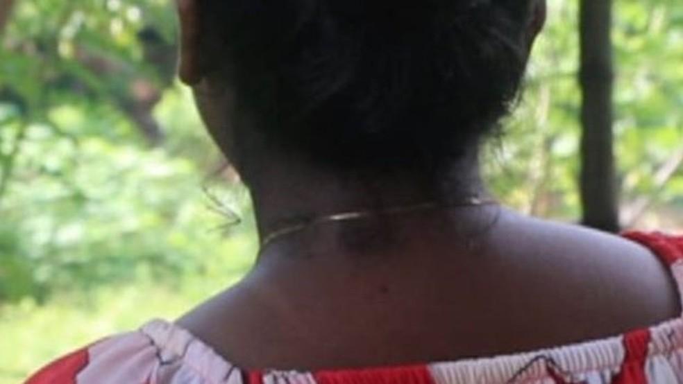 Shiroma Pereira (nome fictício) teve que enfrentar os efeitos colaterais de um creme de clareamento — Foto: BBC