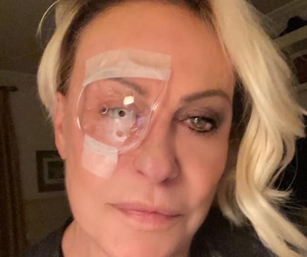 Ana Maria Braga aparece de tapa-olho após cirurgia: Pirata moderna