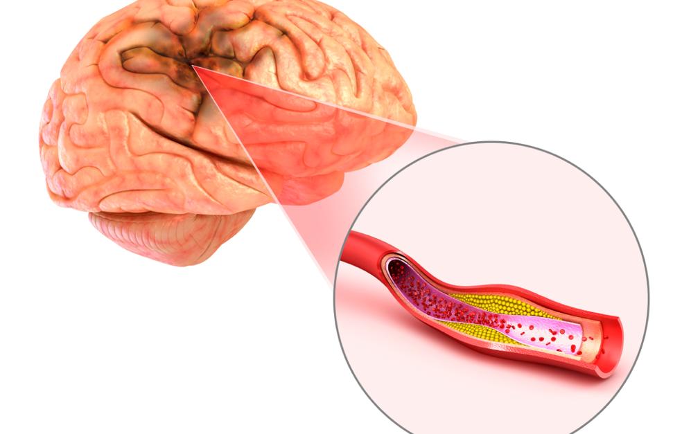 O AVC é causado por uma interrupção do fluxo sanguíneo em parte do cérebro. — Foto: Banco de Imagens