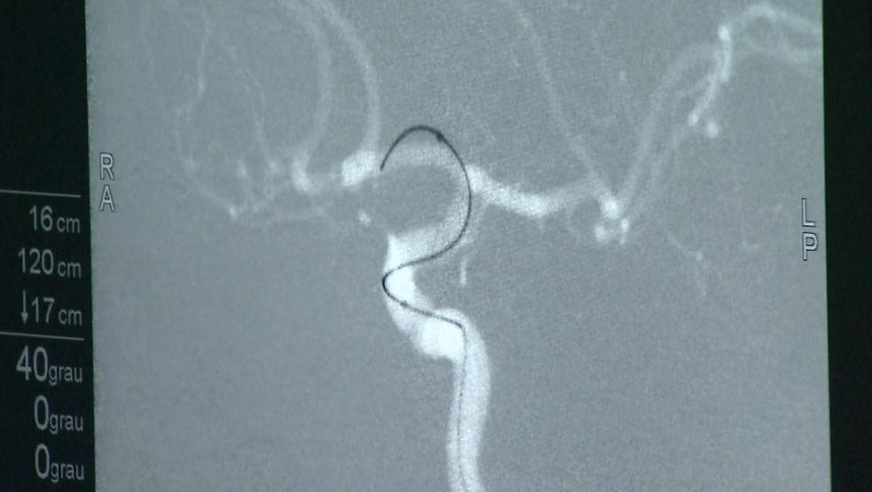 Stent é implantado com cateter em vaso sanguíneo no cérebro do paciente no Hospital das Clínicas de Ribeirão Preto — Foto: Ronaldo Gomes/EPTV
