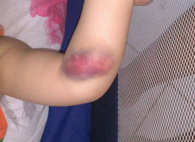 Os hematomas são comuns em quem convive com a hemofilia  (Foto: Arquivo pessoal/ Edna Carla)