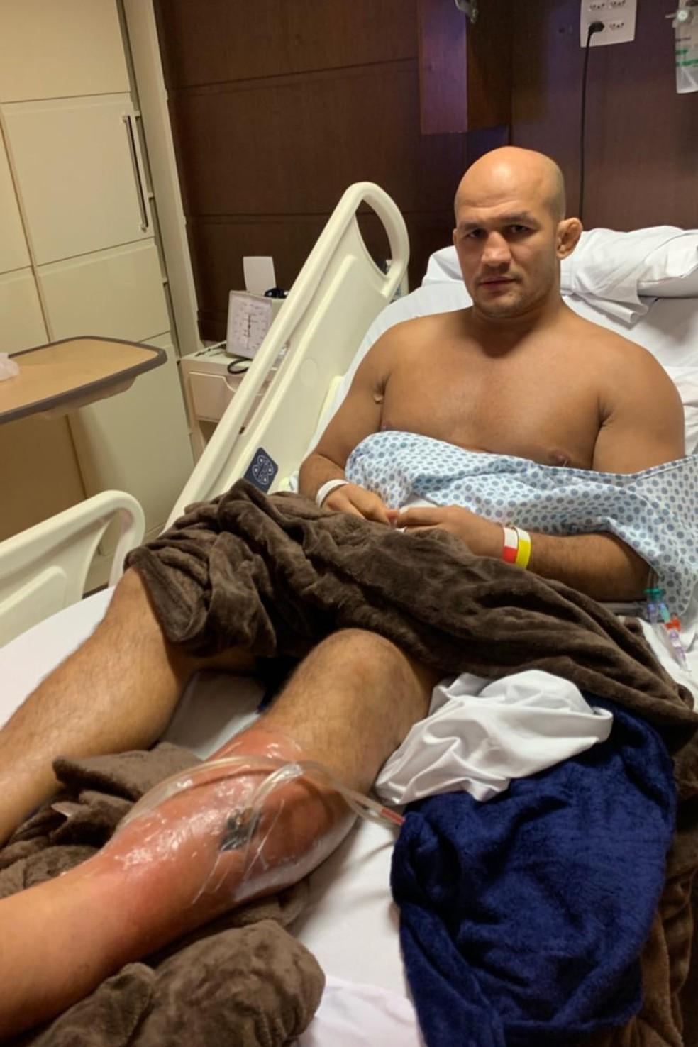 Junior Cigano posa com o dreno na perna — Foto: Reprodução/Instagram
