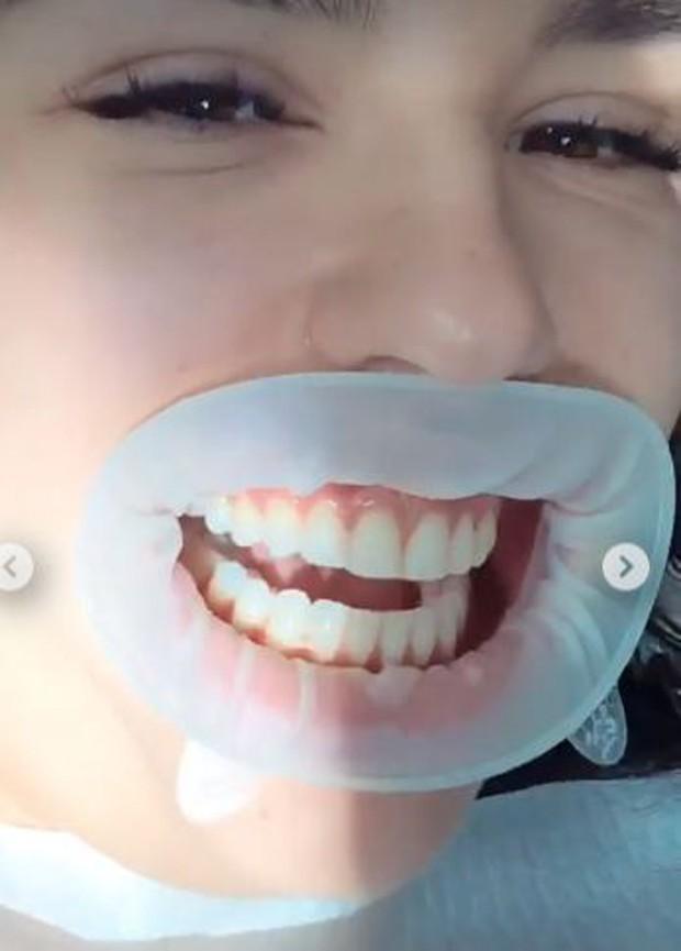 Kéfera antes de iniciar o processo nos dentes (Foto: Reprodução/Instagram)