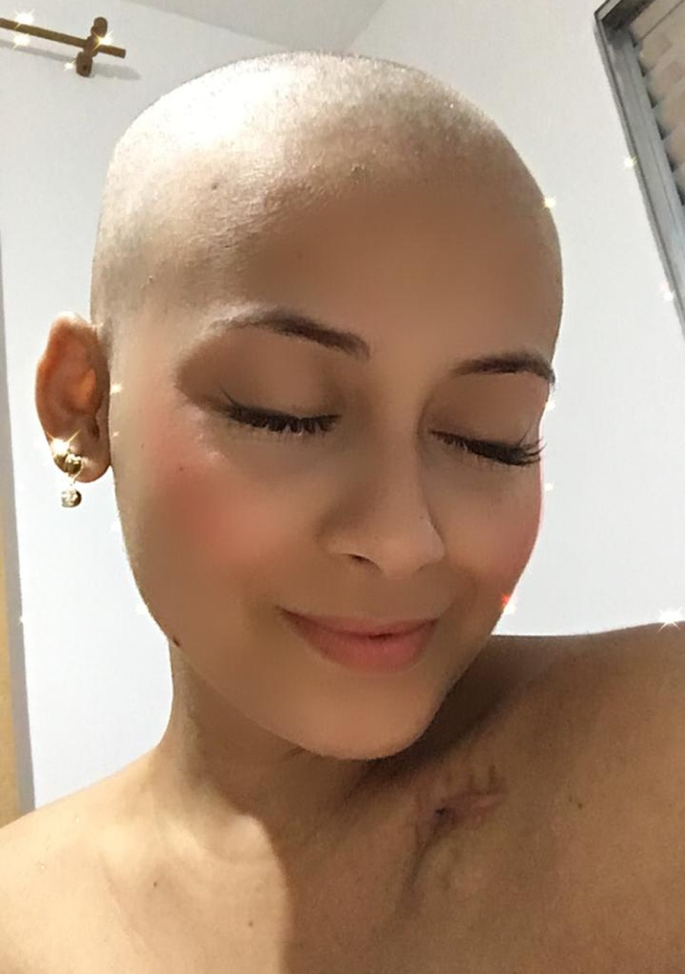 Jovem após raspar o cabelo, o que, segundo ela, foi libertador no seu processo de tratamento — Foto: Arquivo Pessoal