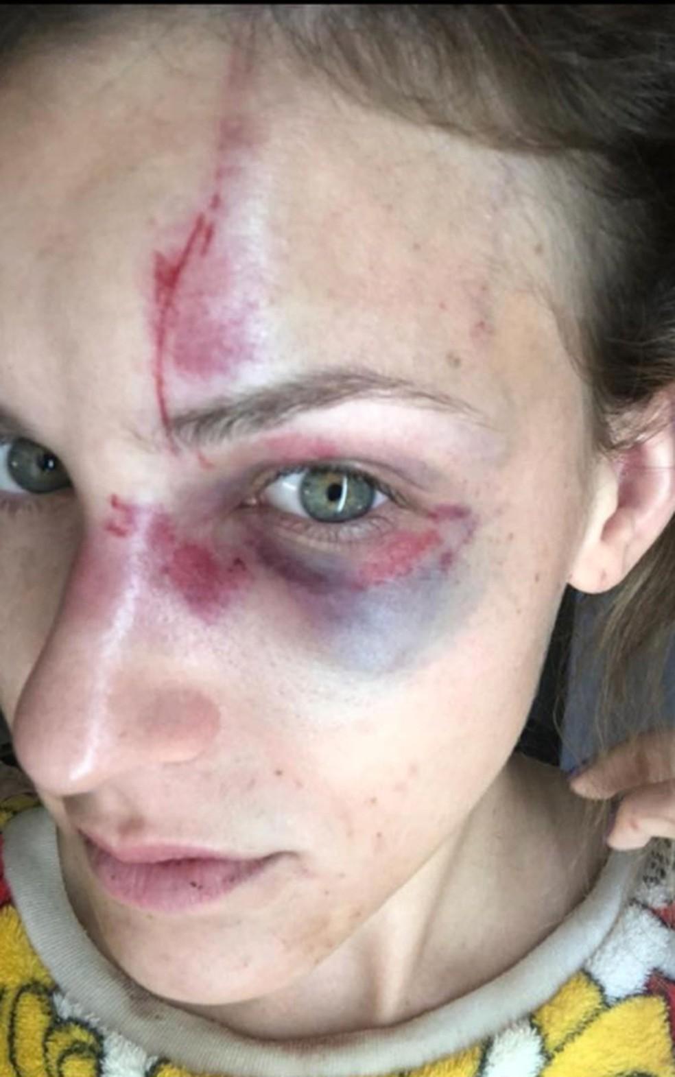 Melissa Gentz depois de ser espancada — Foto: Melissa Gentiz/Arquivo pessoal