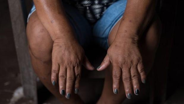 A brasileira Maria do Socorro Silva é destacada no relatório da Global Witness como defensora da terra e alvo de ameaças de morte (Foto: MARIO CAMPAGNANI/JUSTIÇA GLOBAL/DIVULGAÇÃO/BBC)
