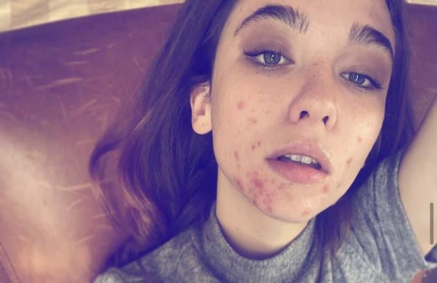 """A atriz italiana Matilda De Angelis (""""The Undoing"""") publicou uma foto sem maquiagem e falou sobre a luta contra as acnes: """"Coisas paradoxais acontecem na vida, não é? Bem, para mim, ser atriz e trabalhar com um rosto comido pela acne é uma delas"""" (Foto: Reprodução/Instagram)"""