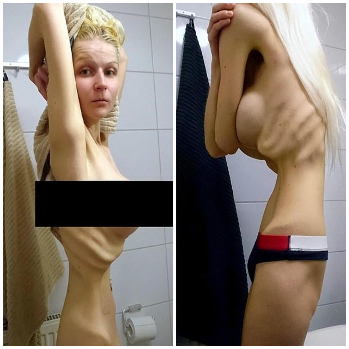 A finlandesa Lola Pahkinamaki no auge de sua anorexia (Foto: Reprodução)