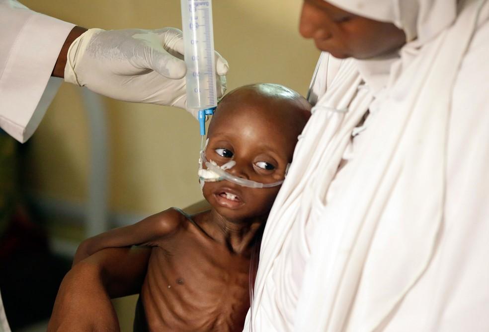 Médico alimenta criança desnutrida em um centro dos Médicos Sem Fronteiras em Maiduguri, Nigéria; lugares que foram dominados pelo Boko Haram sofrem com desnutrição e fome (Foto: Sunday Alamba/AP)