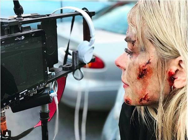 A atriz Jamie King no set da série na qual ela ficou ferida (Foto: Instagram)
