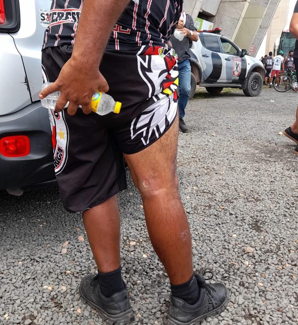 Torcedor atingido com tiro na perna  — Foto: ge