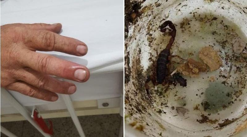 Biólogo é picado por escorpião em SC e vai parar no hospital; FOTO