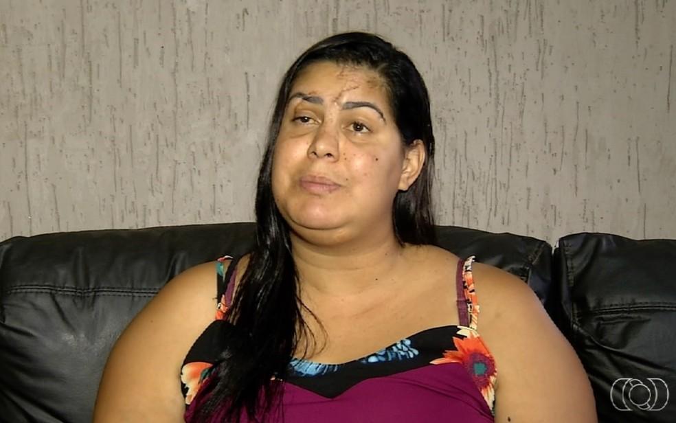 Jeane relata que ficou cega de um olho após agressão do namorado com garrafa de vidro — Foto: TV Anhanguera/Reprodução