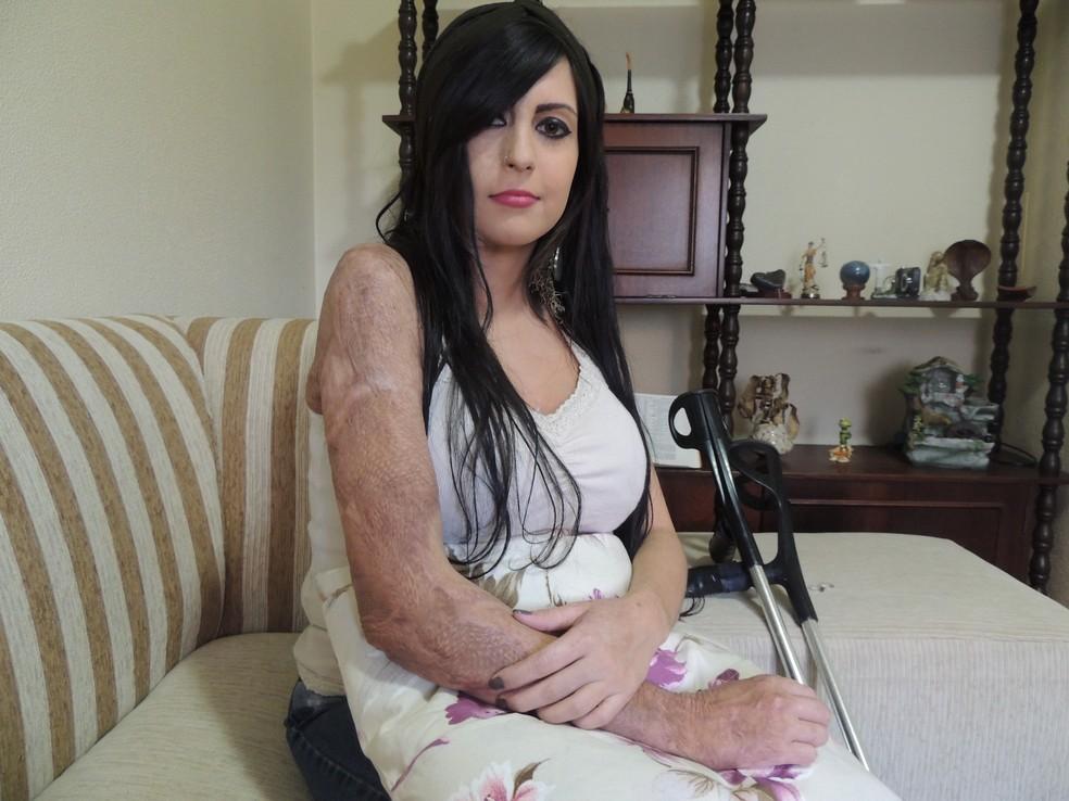 Em 2013, na época com 19 anos, Bárbara teve 40% do corpo queimado  — Foto: Rafaella Fraga/G1