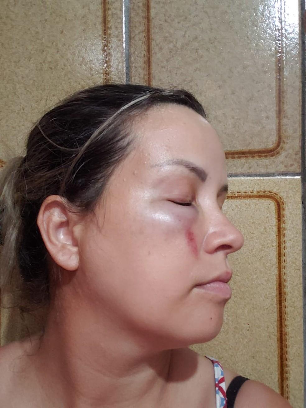 Mulher ficou com hematomas após agressões — Foto: Arquivo Pessoal/Tatiane Gonçalves