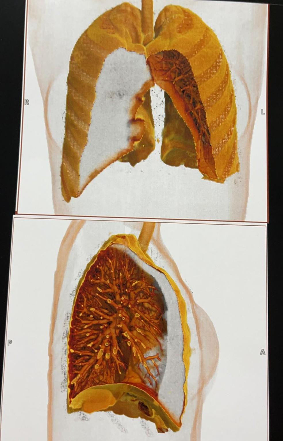 Exame apontou que o ar está comprimindo o pulmão de Jessika Germiniani — Foto: Arquivo pessoal
