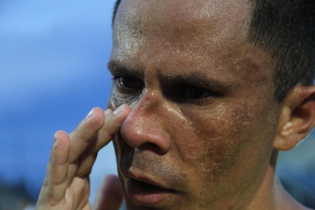 Fininho teve uma fratura no nariz no jogo contra o São Raimundo-RR, no último domingo, em Manaus (Foto: Arlesson Sicsú/Nacional)