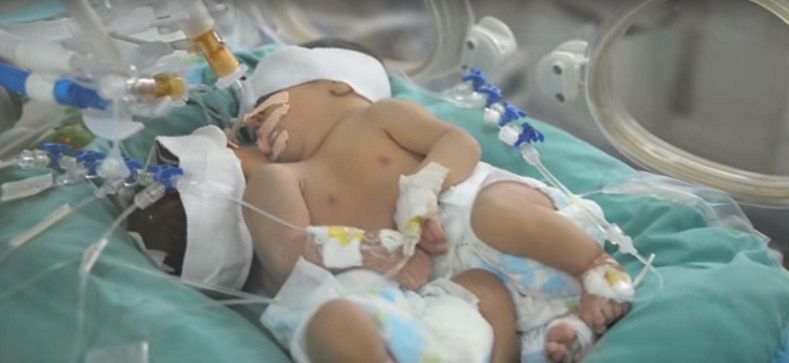 Gêmeas siamesas nascem na Mauritânia e permanecem em observação até que sejam transferidas para centro médico especializado.  (Foto: Africanews/Reprodução)