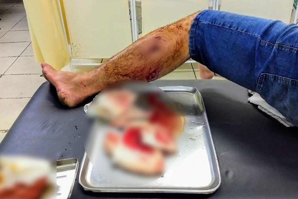 Hilton foi baleado com balas de borracha nas duas pernas (Foto: PM/Divulgação)
