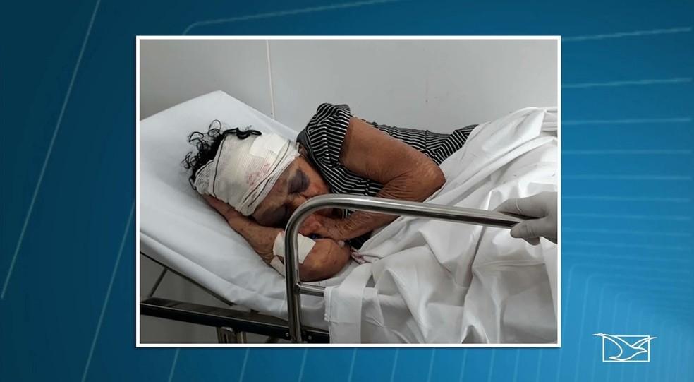 Raimunda Ferreira Lima, de 81 anos, morreu na noite de terça-feira (23) no Hospital Macrorregional de Coroatá. — Foto: Reprodução/ TV Mirante