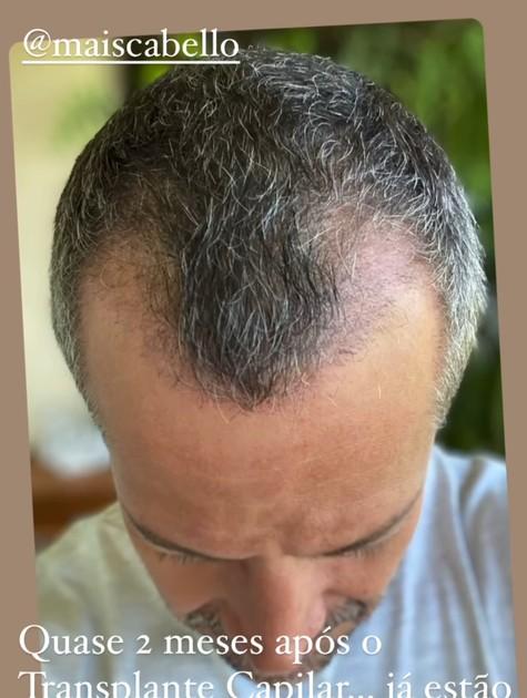 Malvino Salvador mostra resultado do implante capilar (Foto: Reprodução)