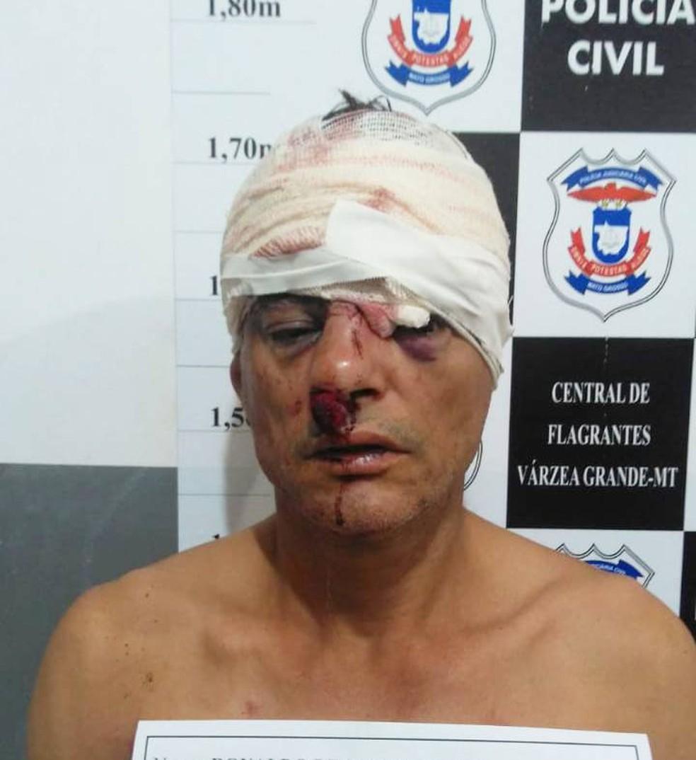 Ladrão tentou roubar morador usando arma falsa e foi espancado pela vítima em Várzea Grande — Foto: Polícia Militar de Mato Grosso/Divulgação
