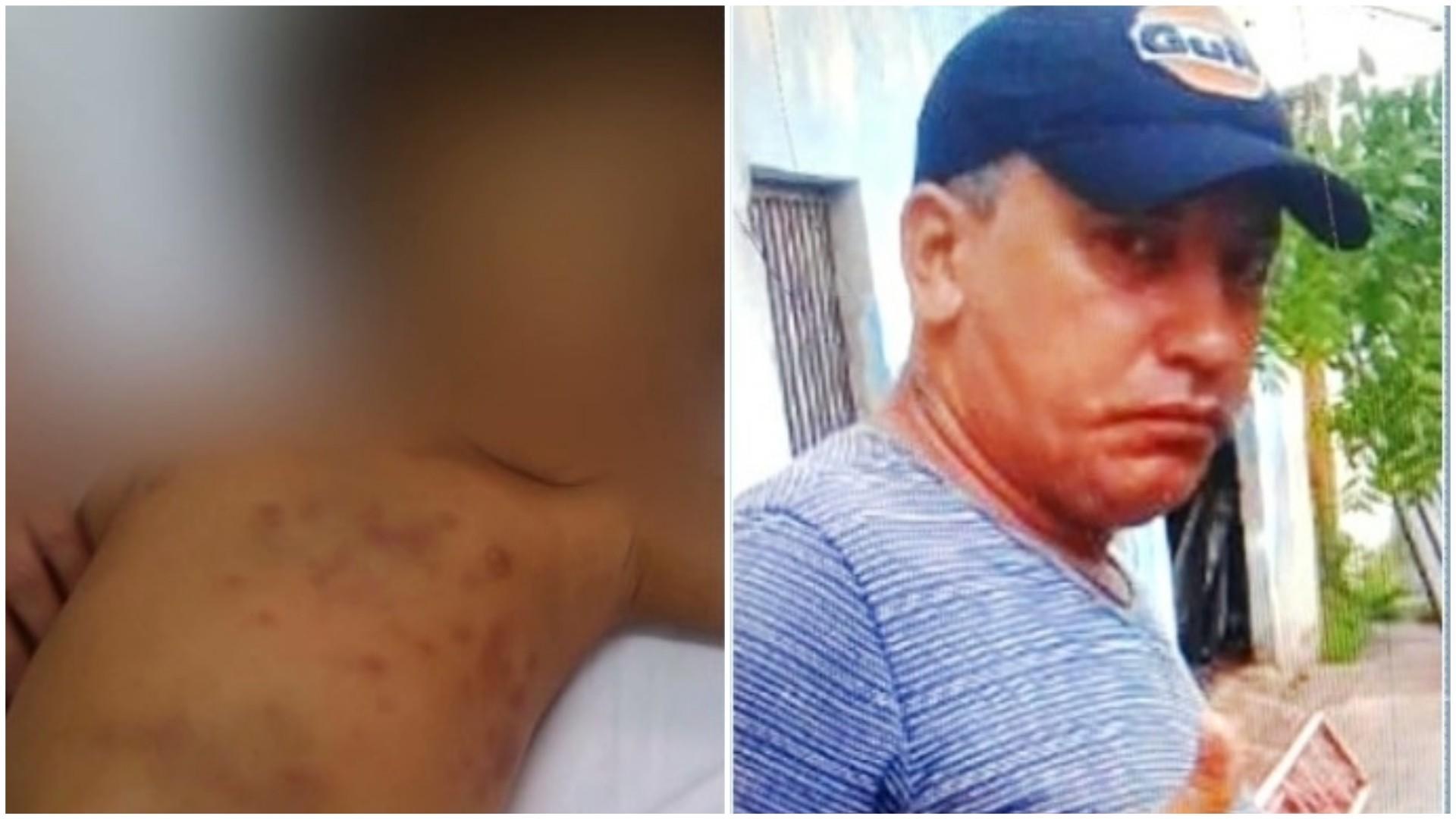 Criança espancada pela mãe pode ter sido abusada sexualmente pelo padastro, afirma polícia no MA