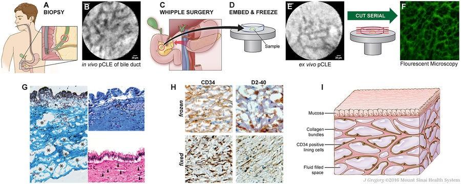 """Por acidente, médicos encontram """"novo"""" órgão no corpo humano"""