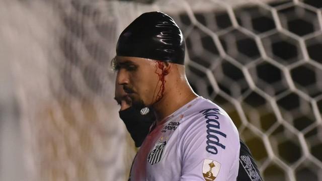 Lucas Veríssimo sangrando em Santos x Boca