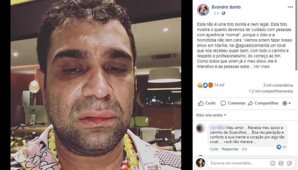 Evandro Santo, ex-Pânico, relata agressão após show em Marília: 'Homofobia e covardia' — Foto: Facebook/Reprodução