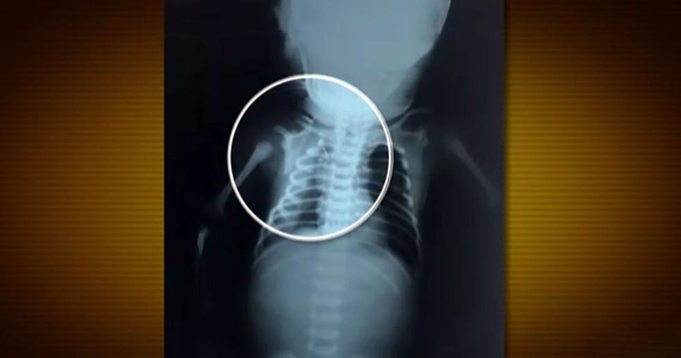 Bebê atingido na barriga da mãe no RJ (Foto: Bom Dia Brasil)