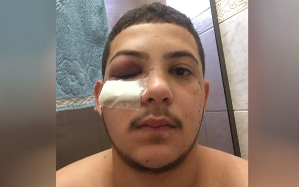 Gael Silvério disse que levou socos no rosto em briga com cantor sertanejo em Goiânia — Foto: Gael Silvério/Arquivo Pessoal