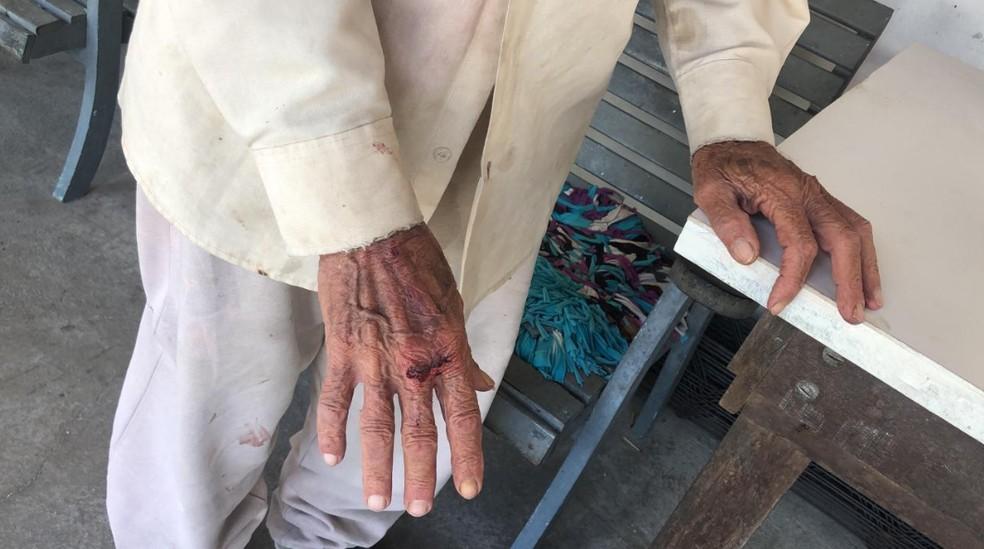 Além de ter o dinheiro levado pelos assaltantes, o idoso ainda foi agredido. — Foto: Paulo Sadat/TV Diário