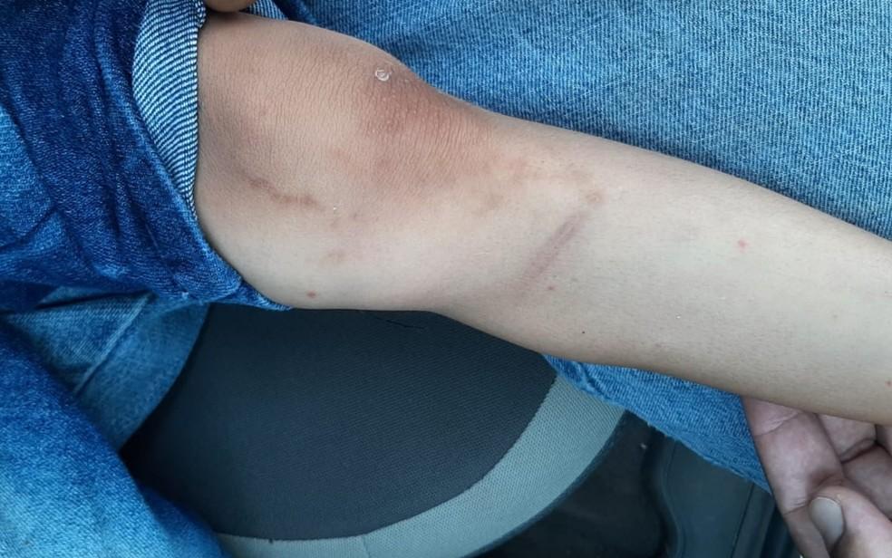Criança com ferimentos na perna que teriam sido provocados pela mãe e padrasto em Mineiros, Goiás — Foto: Divulgação/Polícia Civil