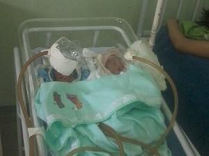 Bebês ficaram internados com máscaras de garrafa PET nesta semana (Foto: Arquivo Pessoal )