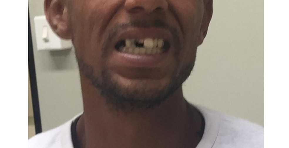 Suspeito alega ter tido dentes quebrados a coronhadas — Foto: Reprodução