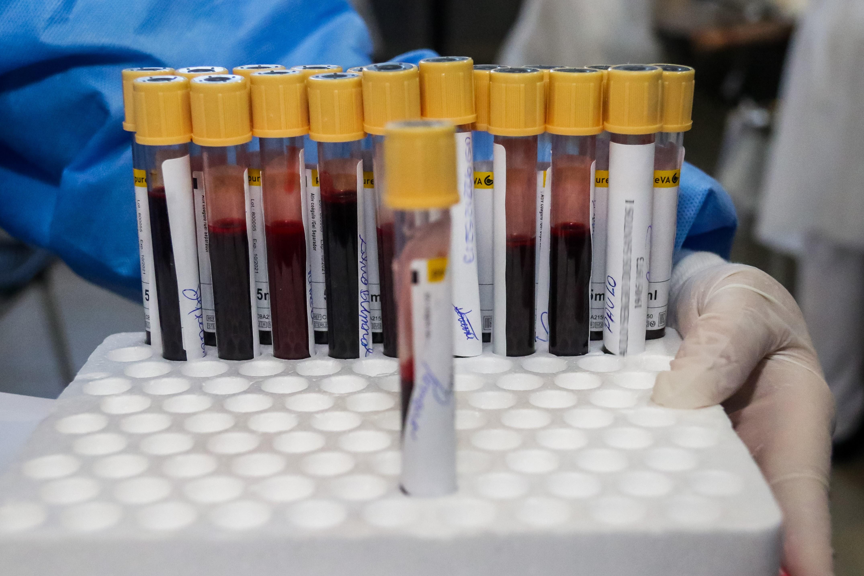 Ouricuri registra mais um caso confirmado do novo Coronavírus