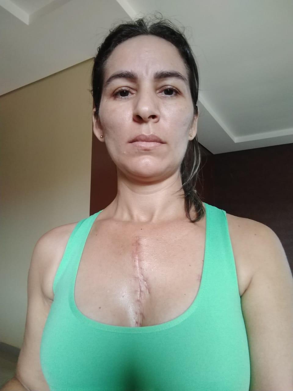 Mulher que levou 13 facadas do marido no AC diz que vivia sob ameaças por conta de ciúmes: 'não podia sair de casa'