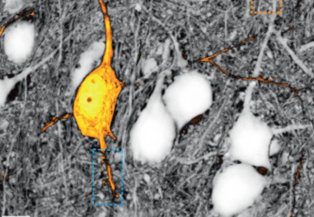 Imagem feita pela técnica Sushi. Com ela, cientistas podem etiquetar espaços minúsculos (Foto: Divulgação/Cell)