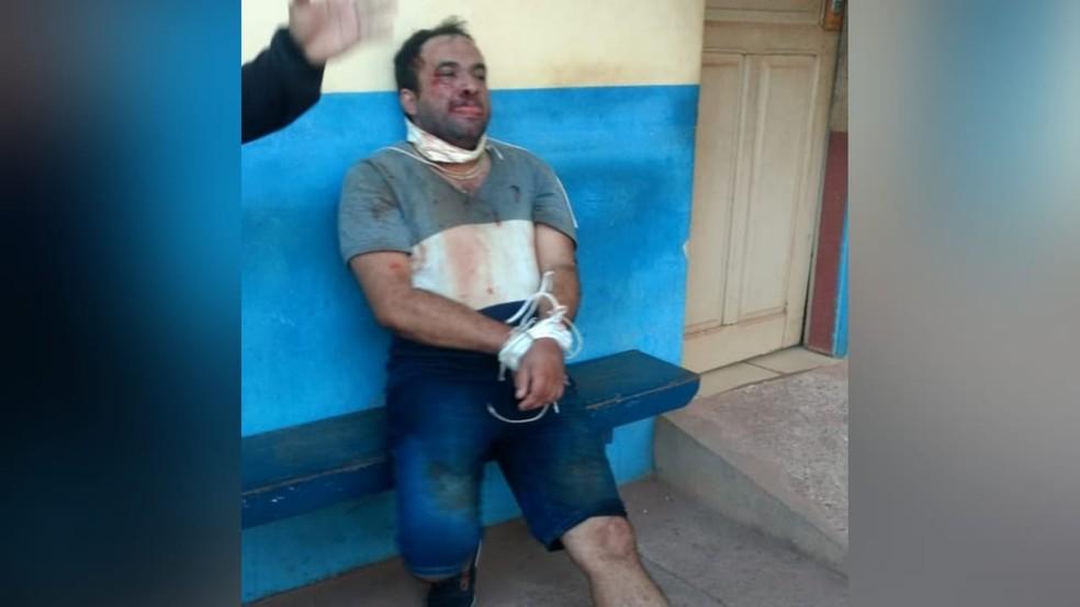 Vítima pulou do carro em movimento para fugir dos sequestradores — Foto: Polícia Civil/Divulgação