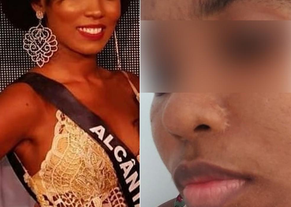 Denize Corrêa ficou com cicatriz e dores após alectomia — Foto: Arquivo pessoal/Denize Corrêa