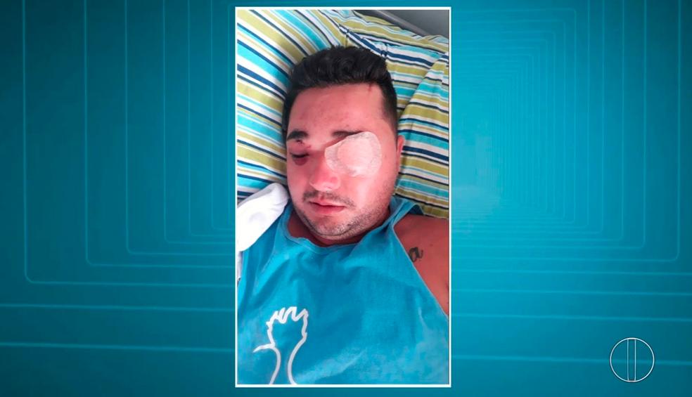 Homem baleado por policial militar em Campos perdeu a visão de um olho (Foto: Reprodução/Inter TV)