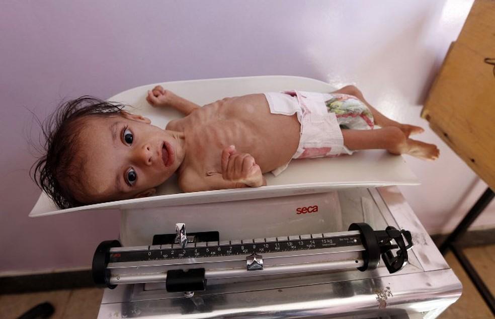 Crianças iemenita desnutrida recebia tratamento em hospital de Sanaa, na quarta-feira (22) (Foto: Mohammed Huwais / AFP)