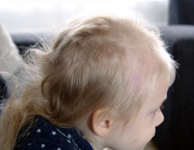 Alexis cortou o cabelo depois de observar o novo visual da mãe (Foto: The Sun)