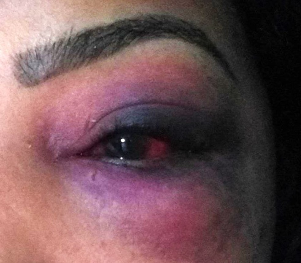 Mulher foi agredida pelo companheiro em Eldorado — Foto: G1 Santos