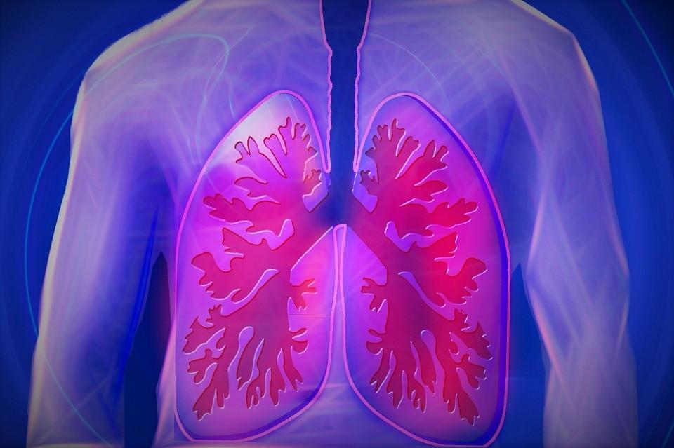 Representação artística de pulmão e árvore brônquica (Foto: Max Pixel/Creative Commons)