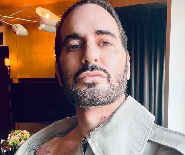 Marc Jacobs três dias após cirurgia estética (Foto: Reprodução/Instagram)