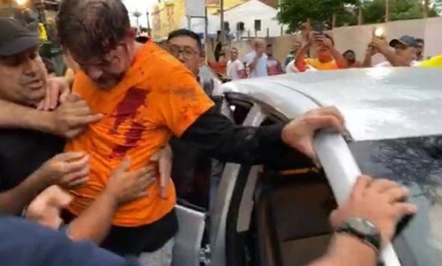 O senador Cid Gomes (PDT-CE) após ser baleado em Sobral, no interior do Ceará